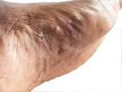 Athlete's Foot Tinea