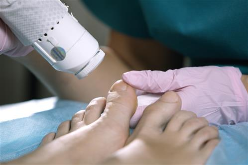 Laser Nail Treatments